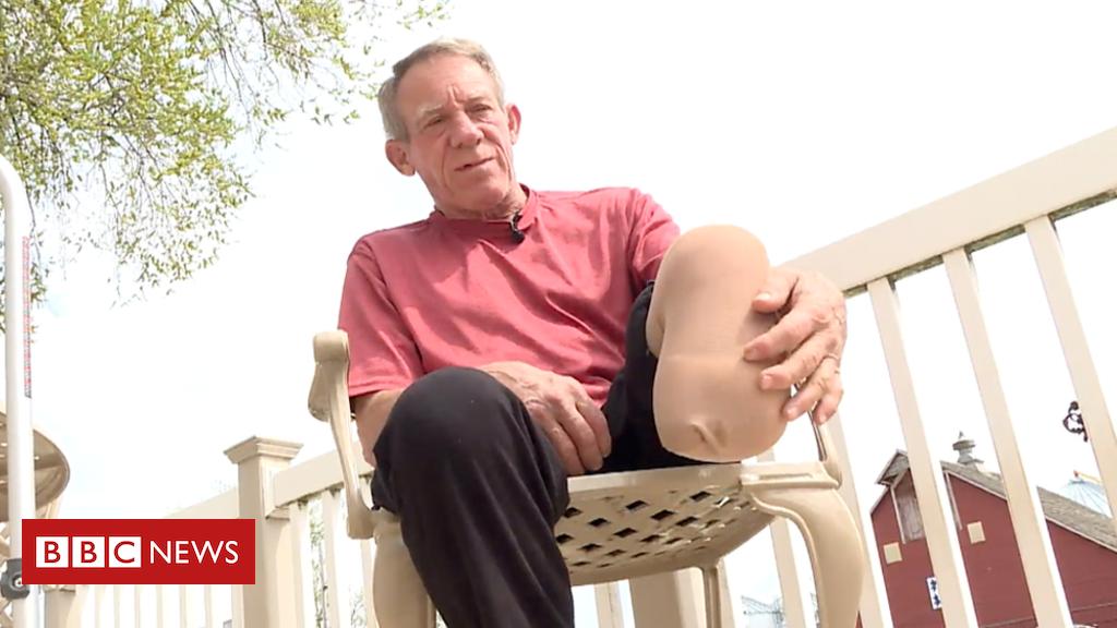 The farmer who cut off his own leg