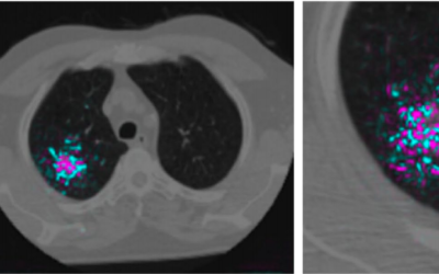 Google shows how AI might detect lung cancer faster and more reliably – MIT Technology Review