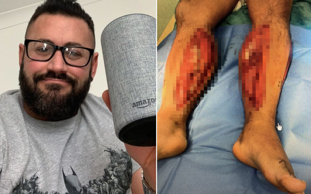 UK bodybuilder says Alexa saved his life after his legs were crushed