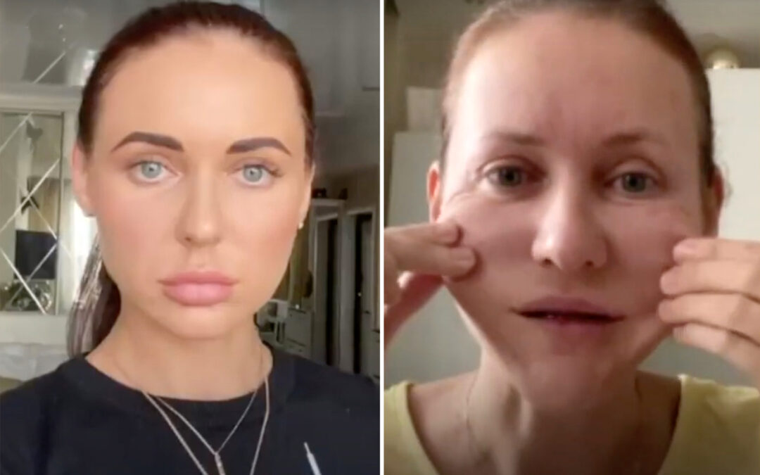 'Nightmare' beauty treatment causes 'mummification' to woman's face